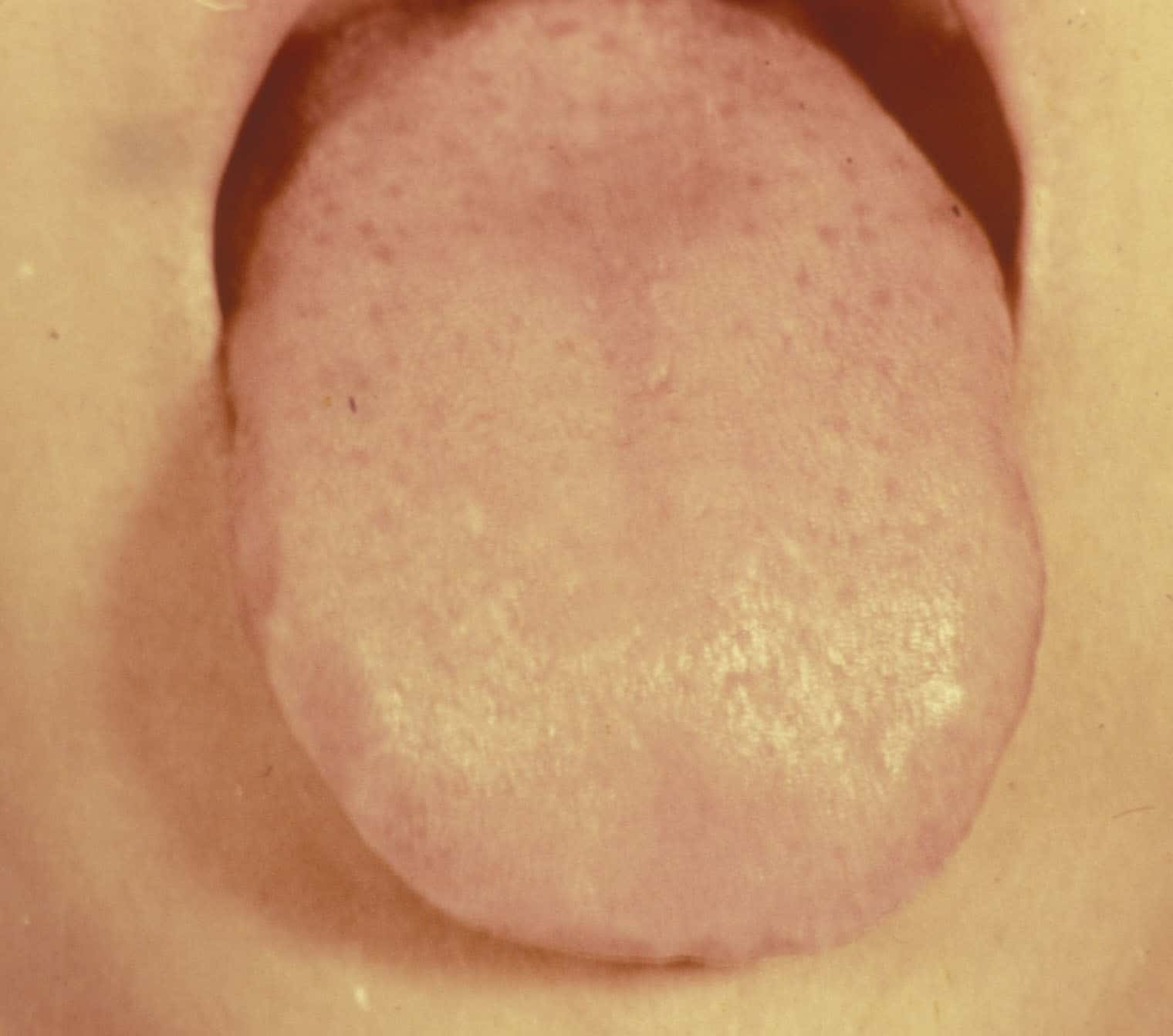 """this is what your tongue may look like if you need Gui Pi Tang. Pale-""""ish"""", maybe a slight, slight coating."""