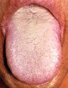 Tongue with thick yellow coating